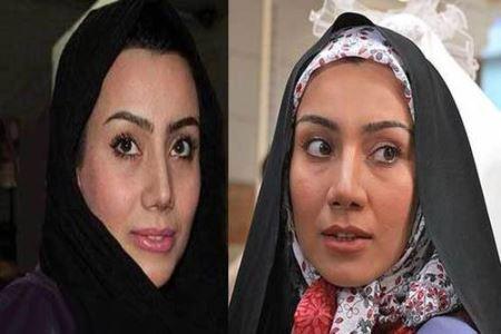 خاطره حاتمی قبل و بعد از عمل زیبایی,بازیگران ایرانی قبل و بعدی از عمل زیبایی