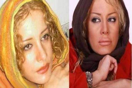 شراره رخام قبل و بعد از عمل زیبایی,بازیگران ایرانی قبل و بعدی از عمل زیبایی