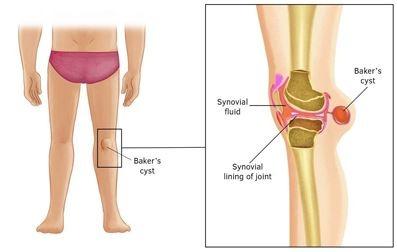 فیزیوتراپی در کیست بیکر, درمان کیست بیکر زانو,کیست پشت زانو,علل کیست بیکر