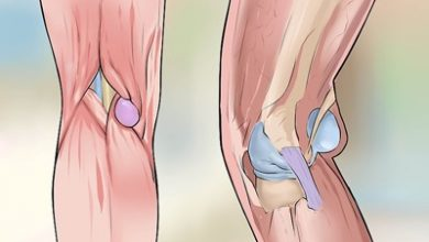 Photo of علل علائم و درمان کیست بیکر (کیست پشت زانو)