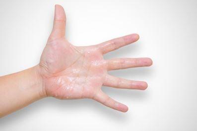 عرق کردن کف دست به هنگام استرس, عرق کردن دست و پا,درمان عرق کردن دست و پا,درمان خانگی عرق کردن دست و پا