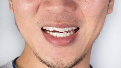 Photo of درمان دندان قروچه با روش های خانگی