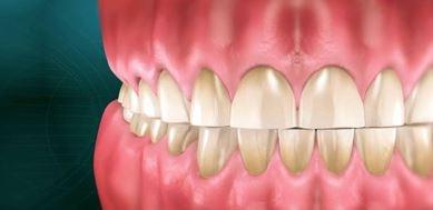 دندان قروچه در شب, راههای برطرف کردن دندان قروچه,اسطوخودوس دندان قروچه,راههای جلوگیری از دندان قروچه