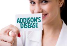Photo of آشنایی با بیماری آدیسون (نارسایی غدد فوق کلیه)