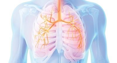 هیپوکسمی, بیماری نارسایی تنفسی,بیماری نارسایی تنفسی,دلایل نارسایی تنفسی حاد