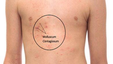 Photo of مولوسکوم عفونی چیست؟ ، علل، علائم و راه درمان