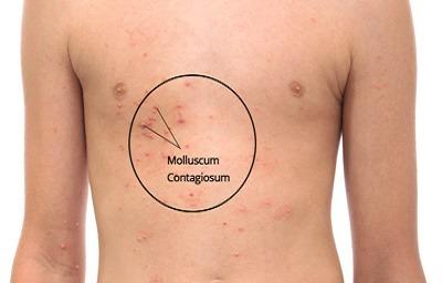 مولوسکوم, درمان سنتی مولوسکوم,راههای درمان مولوسکوم,انتقال بیماری مولوسکوم