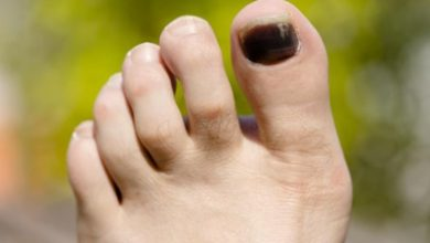 Photo of علت و درمان سیاه شدن ناخن پا