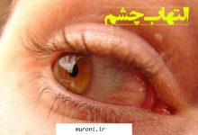 تصویر التهاب چشم و روش های درمان آن
