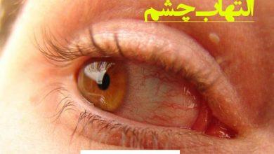 Photo of التهاب چشم و روش های درمان آن