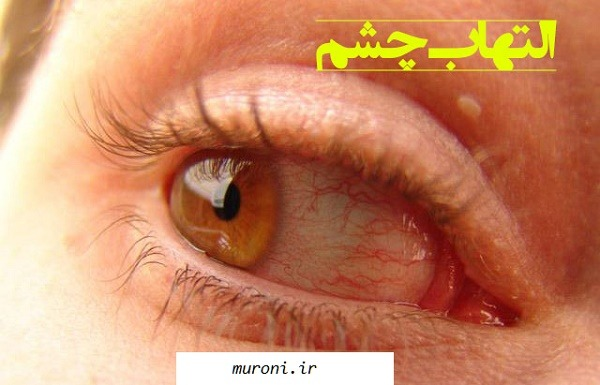 التهاب چشم و روش های درمان آن,التهاب چشم