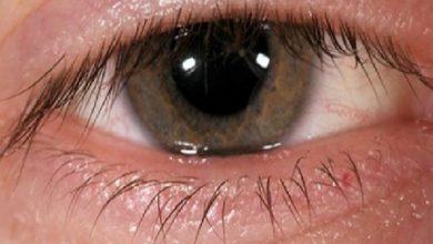 Photo of ورم پلک ، علل و راه درمان