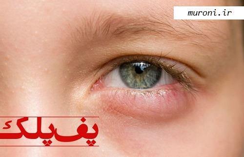پف پلک و علت پف بالای چشم | عمل پف چشم