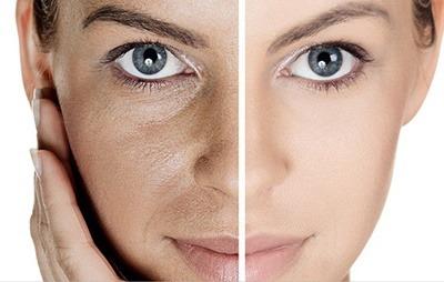 منافذ باز پوست,منافذ پوست,باز شدن منافذ پوست