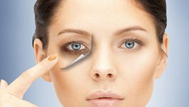 Photo of گودی زیر چشم، علت و درمان آن با روش های خانگی