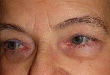 تصویر بیماری ادرار سیاه یا آلکاپتونوری چیست؟