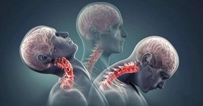 علایم آرتروز گردن, آرتروز گردن درمان,راه جلوگیری از آرتروز گردن,درمان آرتروز گردن با فیزیوتراپی