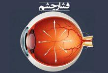 تصویر فشار چشم | چه عواملی باعث افزایش فشار چشم میشود ؟