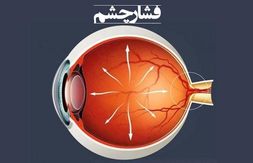 فشار چشم,چه عواملی باعث افزایش فشار چشم میشود ؟