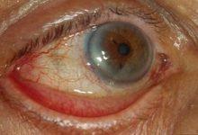 Photo of علل ، علائم و درمان بیماری اکتروپیون