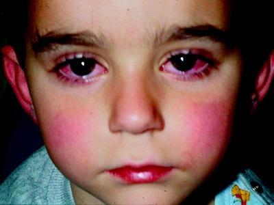 ویروس کاوازاکی, علائم بیماری کاوازاکی,علایم بیماری جدید کاوازاکی,علل بروز بیماری کاوازاکی