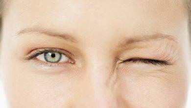 Photo of علت پرش پلک چشم و روش های درمان