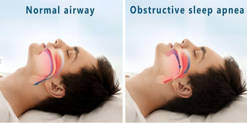 همه چیز را درباره وقفه تنفسی هنگام خواب یا آپنه بدانید!,آپنه,تنگی نفس در خواب