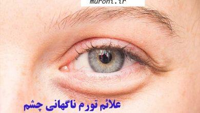 Photo of پیشگیری، علائم و راه درمان تورم ناگهانی چشم