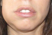 Photo of درمان خانگی عفونت و آبسه دندان
