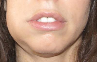 درمان فوری آبسه دندان, روش برطرف کردن ورم آبسه دندان,آبسه دندان چیست,آبسه دندان درمان