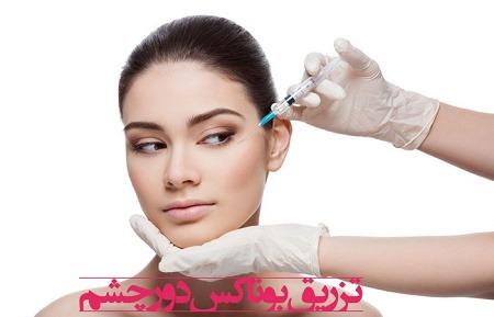 تزریق بوتاکس دور چشم ، روش ، عوارض و مراقبت های بعد عمل,بوتاکس