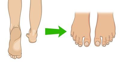 علت پینه پا, درمان فوری پینه پا,درمان قطعی پینه کف پا,درمان قطعی پینه پا