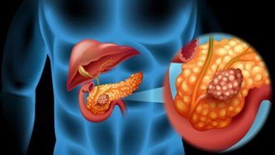 Photo of نشانه ها و علائم سرطان پانکراس یا لوزالمعده