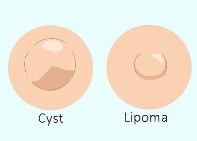 جراحی لیپوم,در آوردن لیپوم