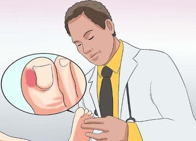 عفونت انگشت پا, عفونت انگشت,عفونت انگشت دست,درمان عفونت انگشت پا