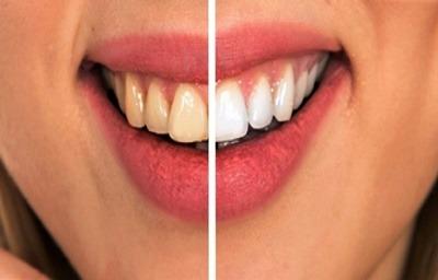 روش درمان پوسیدگی دندان, موادی برای رفع پوسیدگی دندان,جلوگیری از پوسیدگی دندان ها,درمان وترمیم پوسیدگی دندان