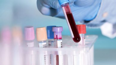 Photo of علت بالا و پایین بودن CPK در آزمایش خون