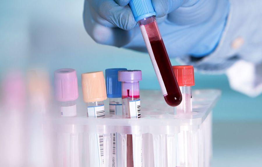 علت بالا و پایین بودن CPK در آزمایش خون