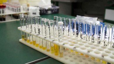 تصویر علت بالا و پایین بودن Cortisol در آزمایش ادرار