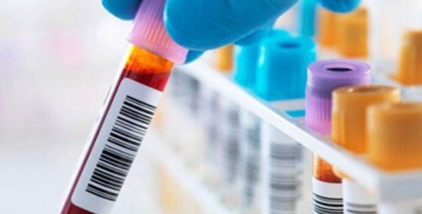 علت بالا و پایین بودن TP در آزمایش خون