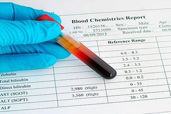 علت بالا و پایین بودن TPBF در آزمایش مایعات بدن